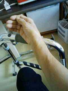 右手が痛い!